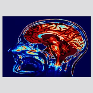 Coloured MRI scan of brain in sagittal se