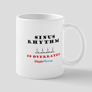 Sinus is Overrated 02 Mugs