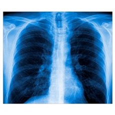 Normal chest X-ray Poster