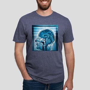 Normal head and brain, MRI  Mens Tri-blend T-Shirt