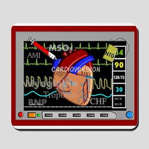 cardiac pillow CP red Mousepad