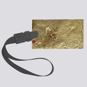 Blood clot, SEM - Large Luggage Tag