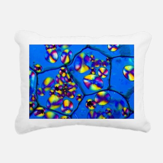 Potato starch grains, light micrograph - Pillow