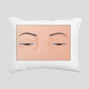 Xanthelasma growths, artwork - Pillow