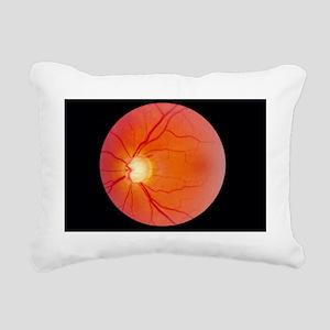 Glaucoma - Pillow