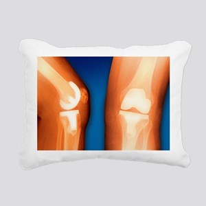 Prosthetic knee joint, coloured X-ray - Pillow
