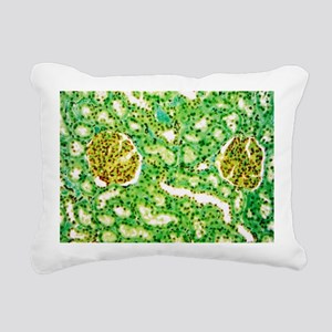 Kidney glomeruli, light micrograph - Pillow