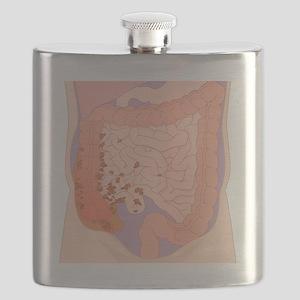 Ruptured appendix, artwork - Flask