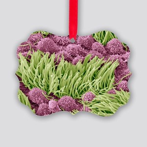 Fallopian tube, SEM - Picture Ornament