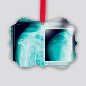 Fractured shoulder, X-rays - Picture Ornament