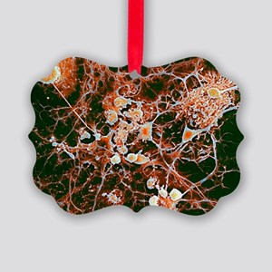 Multiple sclerosis, SEM - Picture Ornament