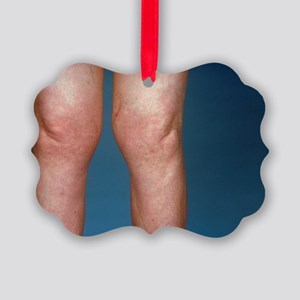 View of knees affected by osteoarthritis - Picture