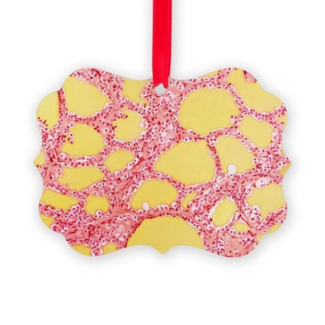 Thyroid gland, light micrograph - Picture Ornament