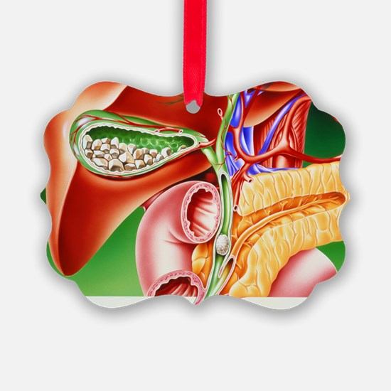 Artwork of gallstones in gall bladder - Ornament