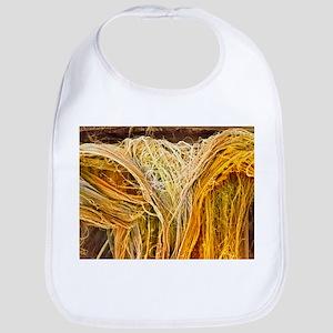 Tendon fibres, SEM - Bib