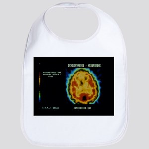PET scan of brain of person with schizophrenia - B