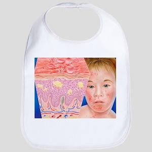 Eczema - Bib