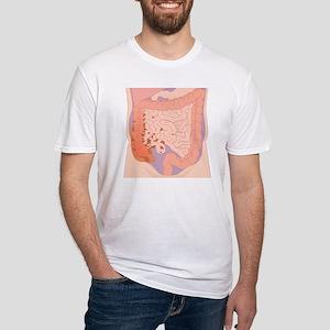 Ruptured appendix, artwork - Fitted T-Shirt