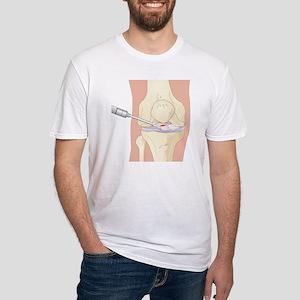Torn cruciate ligament, artwork - Fitted T-Shirt