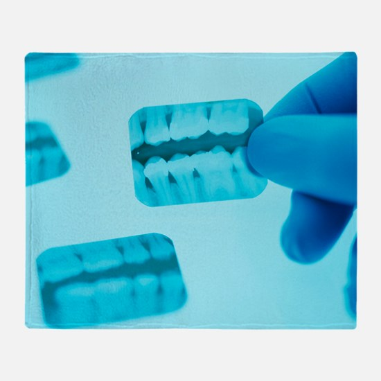 Dental X-rays - Throw Blanket