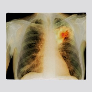 Lung abscess, X-ray - Throw Blanket