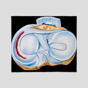 Artwork of torn knee cartilage in sports injury -