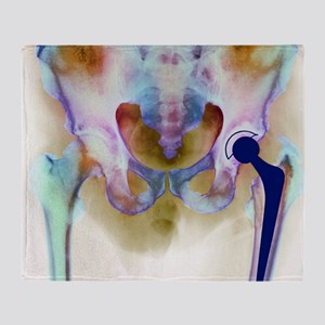 Hip joint replacement, X-ray - Throw Blanket