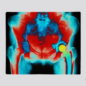 Coloured X-ray of an artificial hip joint - Stadi