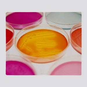 Petri dishes containing bacterial cultures - Stad