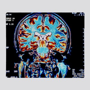 Coloured MRI scans of the brain, coronal view - S