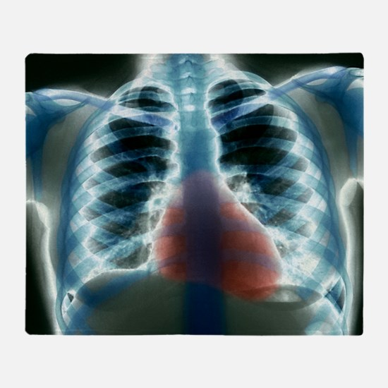 Healthy heart and lungs, X-ray - Throw Blanket