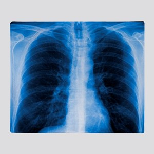 Normal chest X-ray - Throw Blanket