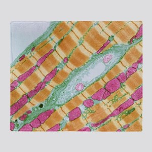Cardiac muscle, TEM - Throw Blanket