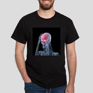 Headache - Dark T-Shirt