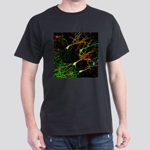 Mouse brain neurons, light micrograph - Dark T-Shi