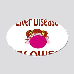 Liver Disease Blows! 20x12 Oval Wall Decal