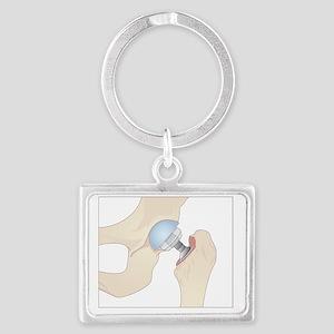 Hip replacement, artwork - Landscape Keychain