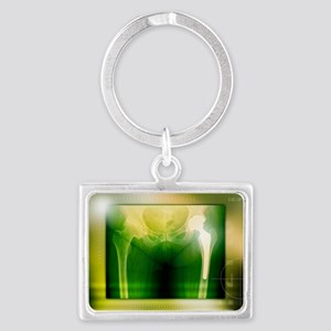 Hip replacement, X-ray - Landscape Keychain