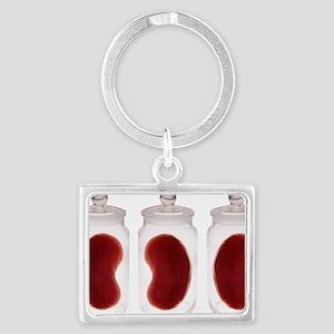 Spare kidneys - Landscape Keychain