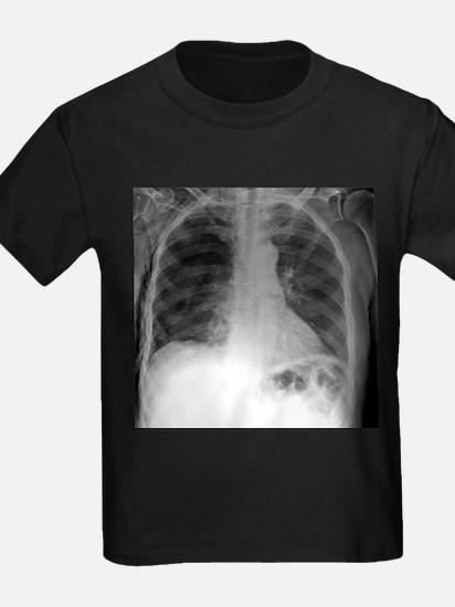 Tension pneumothorax, X-ray - Kid's Dark T-Shirt