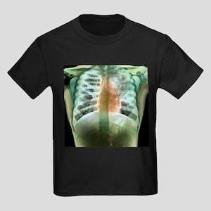 Tuberculosis, X-ray - Kid's Dark T-Shirt