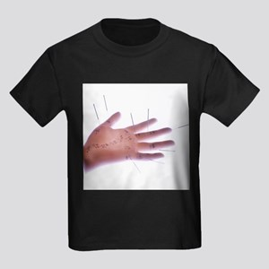 Acupuncture model - Kid's Dark T-Shirt