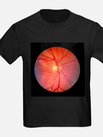 Normal retina of eye - Kid's Dark T-Shirt