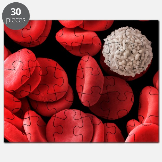 Red and white blood cells, SEM - Puzzle