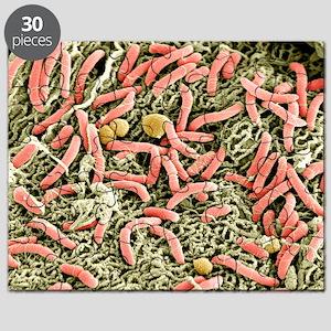 Vaginal bacteria, SEM - Puzzle
