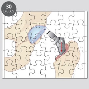 Hip replacement, artwork - Puzzle