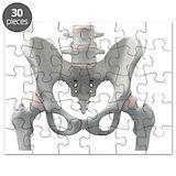Pelvis Puzzles