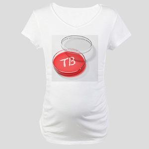 Tuberculosis bacteria in a petri dish - Maternity