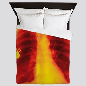 Heart pacemaker, X-ray - Queen Duvet
