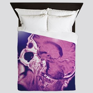 Normal head and brain, MRI scan - Queen Duvet